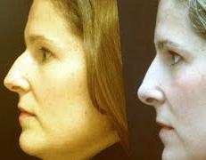 Como Corregir la Nariz sin Cirugia, Sistema RINOLOOK