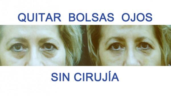 QUITAR-BOLSAS-OJOS