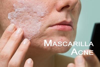 mascarilla-contra-acne-y-puntos-negross
