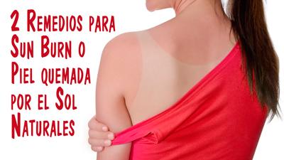 tratamiento-quemaduras-solares-natural